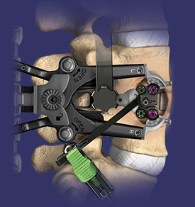 minimally invasive spine surgery, XLIF, Lateral lumbar Interbody Fusion