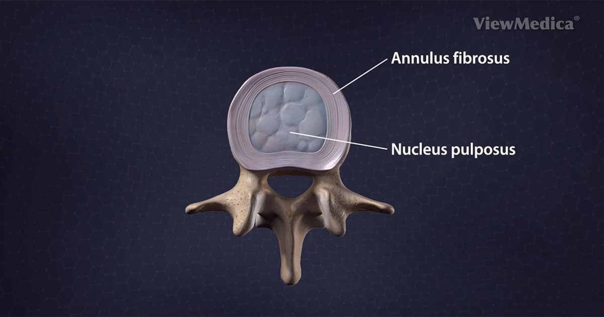 Medical Animations Detailing Spine Conditions And Spine