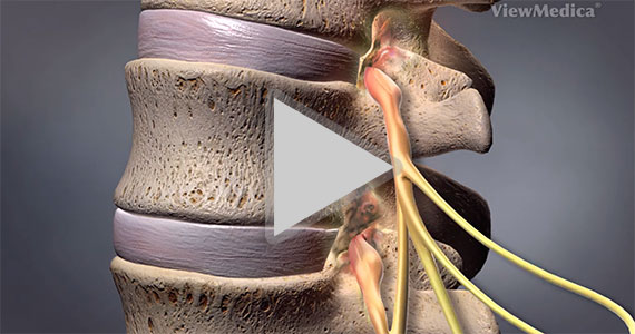 medical animations detailing spine and joint conditions, back pain reno, neck pain reno, spine surgery, injection therapy, radiofrequency ablation reno