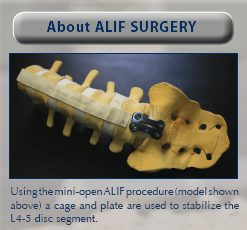 alif surgery for low back pain, nevada