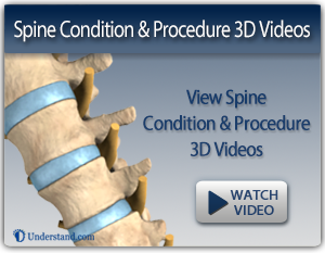 spine nevada procedure animations, non surgical treatment nevada, back pain nevada, neck pain nevada, spine condition videos nevada, spine treatment reno, spine care reno, spine care nevada, reno neurosurgeon, reno neurosurgery, nevada neurosurgeon, nevada neurosurgery