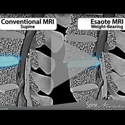 open and weight bearing mri for lumbar spinal stenosis