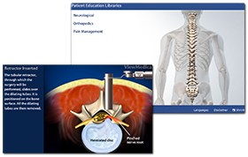 endoscopic spine surgery, endoscopic spine surgery reno, endoscopic spine surgery nevada, endoscopic spine surgery las vegas, endoscopic spine surgery sparks, endoscopic spine surgery carson city, spine Nevada, neurosurgeon reno, neurosurgery reno, neurosurgeon nevada, neurosurgery nevada, neurosurgeon las vegas, neurosurgery las vegas, neurosurgeon sparks, neurosurgery sparks, neurosurgeon carson city, neurosurgery carson city, sierra neurosurgery group, advanced neurosurgery, sierra regional spine institute, minimally invasive spine institute, minimally invasive spine institute nevada, minimally invasive spine institute reno,minimally invasive spine institute carson city, minimally invasive spine institute las vegas, minimally invasive spine institute sparks, spine center reno, spine surgeon reno, spine surgeon nevada, minimally invasive spine surgery nevada, minimally invasive spine surgery reno, minimally invasive spine surgery las vegas, minimally invasive spine surgery carson city, spine center nevada, Mini-Brochure, provided by spine nevada, spine center in reno nevada, neurosurgeon reno, neurosurgery reno, back pain reno, neck pain reno, neurosurgeon carson city, back pain nevada, neck pain nevada, neurosurgeon nevada, back pain las vegas, neck pain las vegas, neurosurgeon las vegas, neurosurgery carson city, spine surgery reno, spine surgeon reno, spine center reno, spine surgery, minimally invasive spine surgery, minimally invasive surgery, spine center nevada, spine care nevada, spine physician nevada, spine treatment nevada, carson city nevada