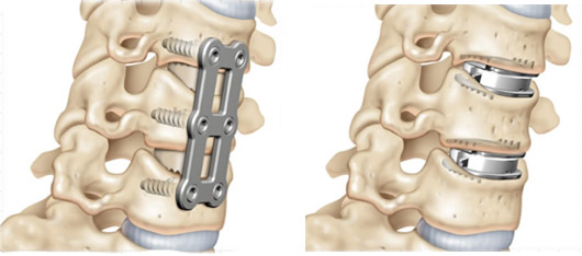 mobi c artificial disc replacement for the cervical spine, reno, sparks, carson city