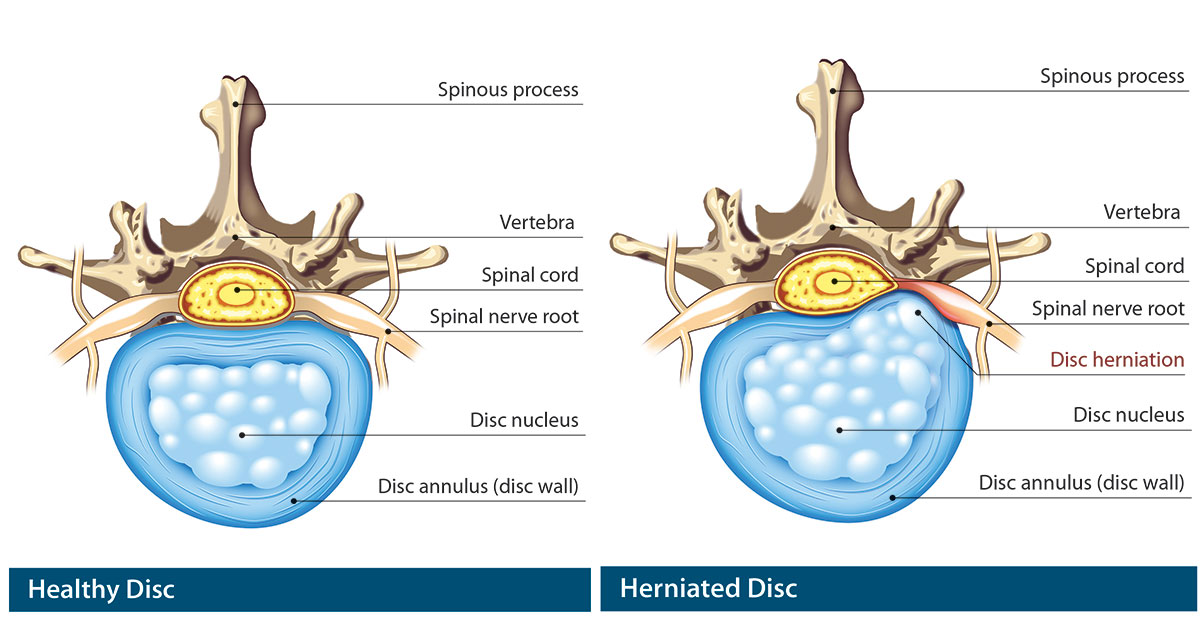 Herniated Disc And Bulging Disc Information Provided By
