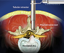 retractor - nerve retractor -spine nevada, endoscopic spine surgery reno, endoscopic spine surgery las vegas, endoscopic spine surgery nevada